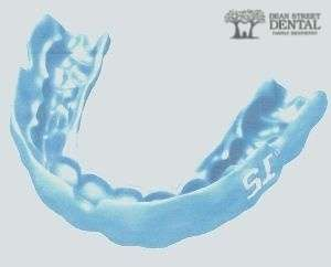 custom fit mouthguard st charles il